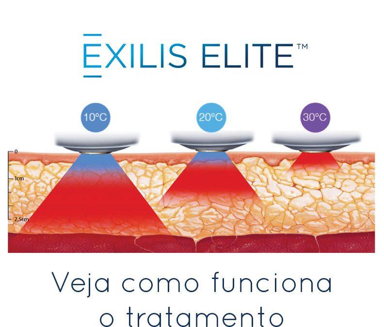 Exilis Elite: tratando flacidez e pequenas gorduras